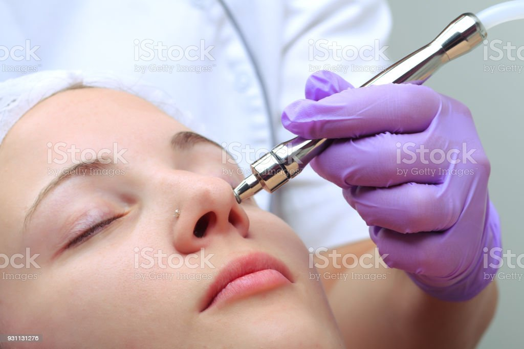 Diamond microdermabrasion, peeling cosmetic. woman during a microdermabrasion treatment in beauty salon stock photo