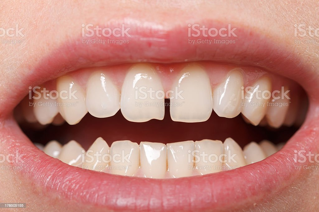 Diastema  between the upper incisors stock photo