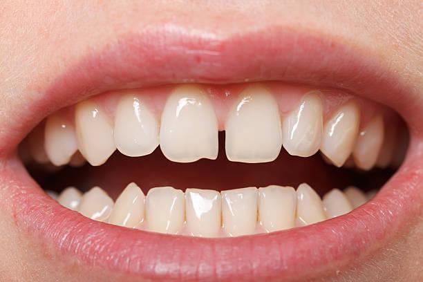 incisors diastema zwischen dem obermaterial - zahnlücke stock-fotos und bilder
