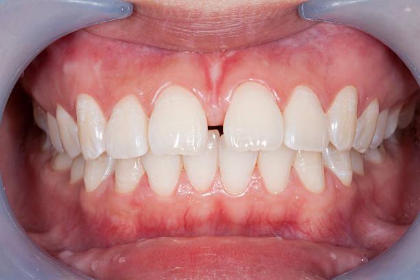 Diastema stock photo