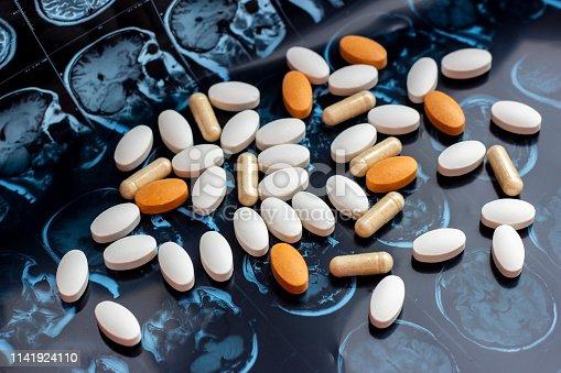 istock Different pharmaceutical medicine pills on magnetic brain resonance scan mri background. Pharmacy theme, health care, drug prescription for tumor, alzheimer, mental illness treatment medication 1141924110