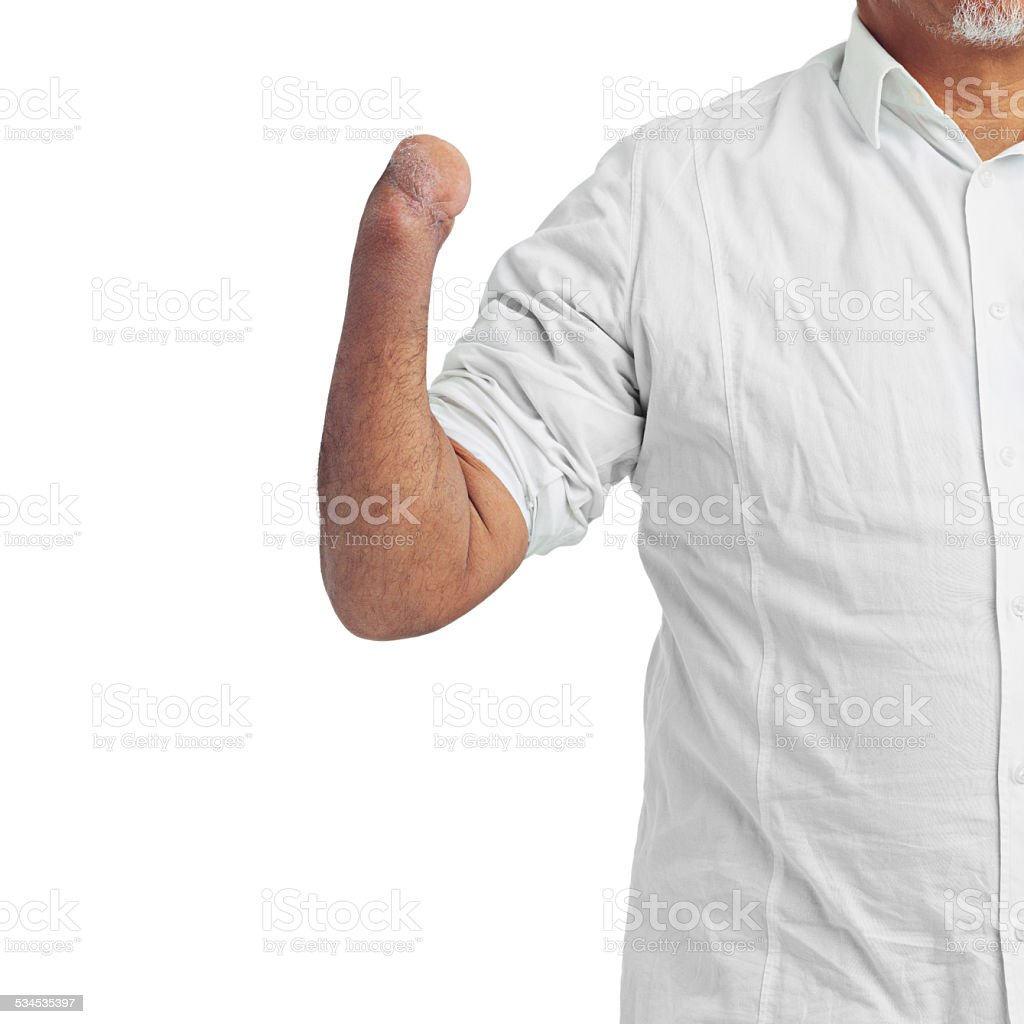 Differently abled stock photo