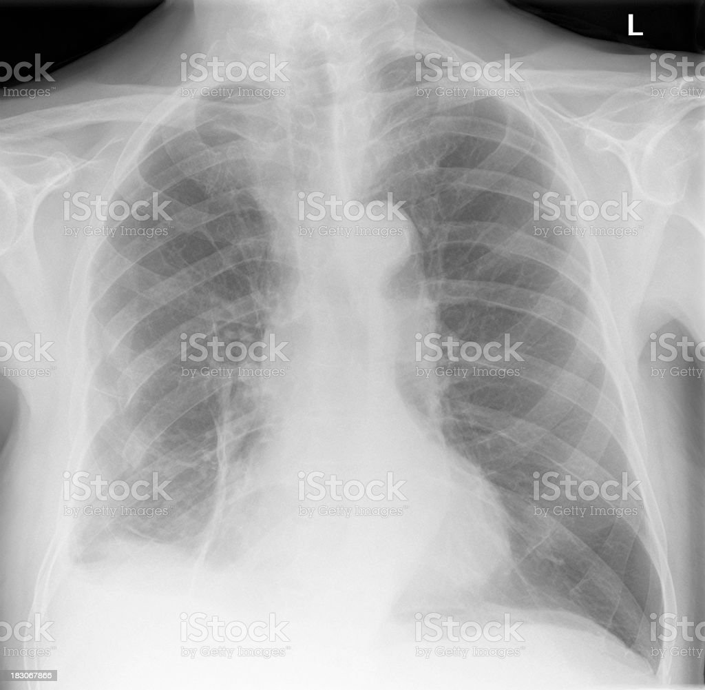 digital chest xray after trauma with broken ribs stock photo