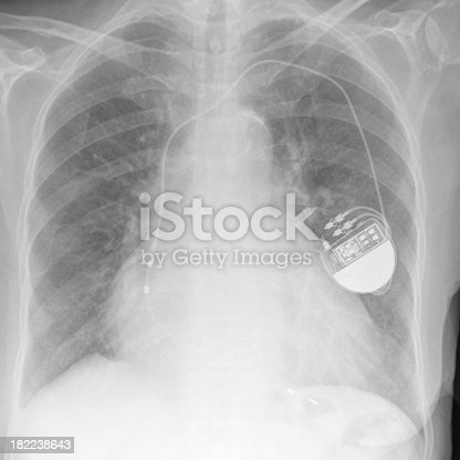 black and white digital chest x-ray showing a permanent pacemaker with a right ventricular lead and the box implanted in the left breast region. Enlarged heart. Lungs clear.