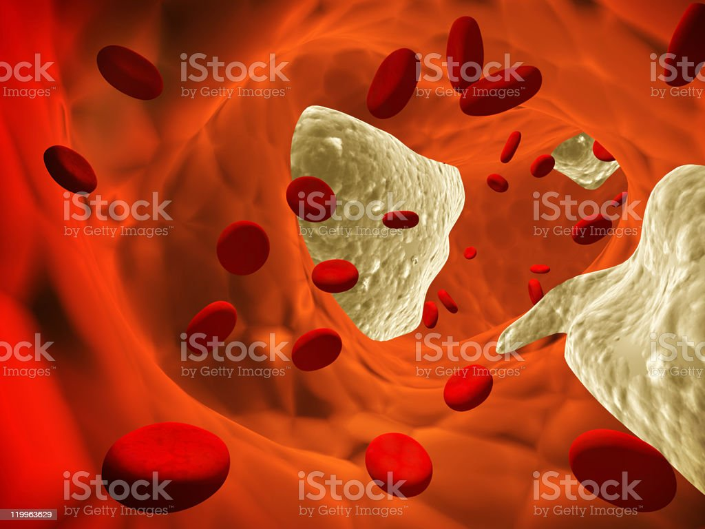 Digital image of atherosclerosis in the blood system stock photo