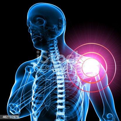 istock Digital portrayal of male shoulder pain in blue 462122975