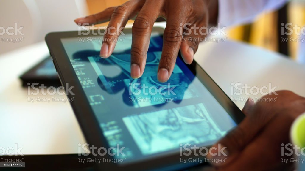 Digital Tablet CAT Scan stock photo