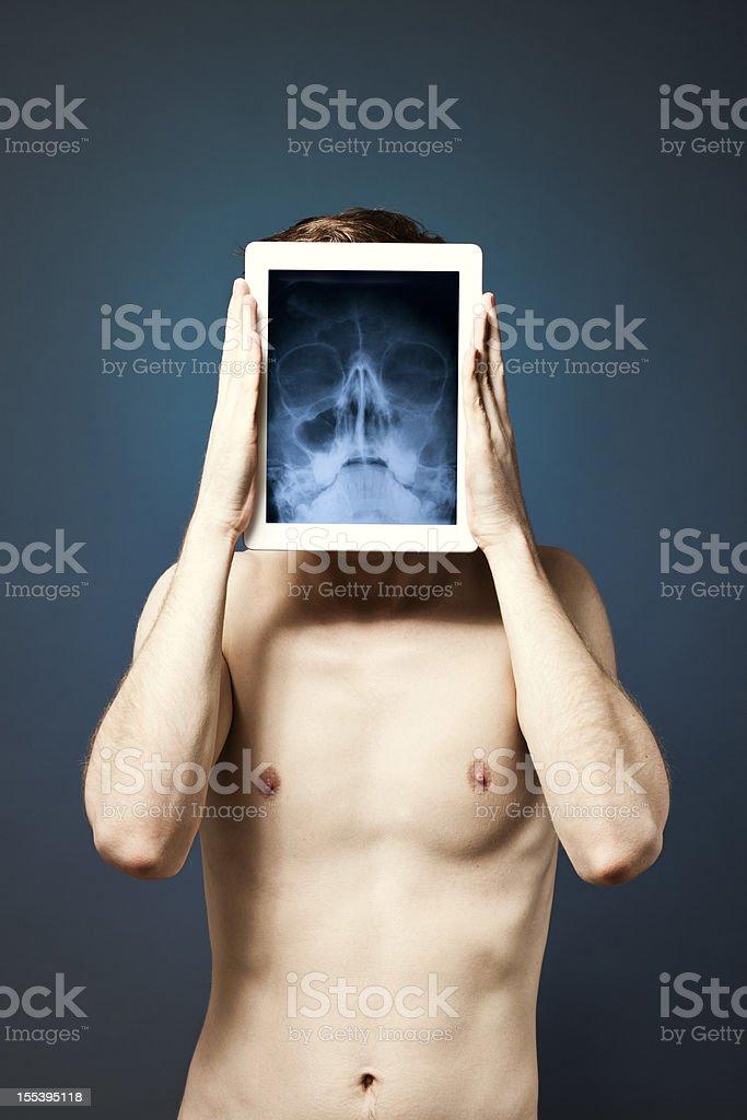 Digital Tablet & X-ray royalty-free stock photo