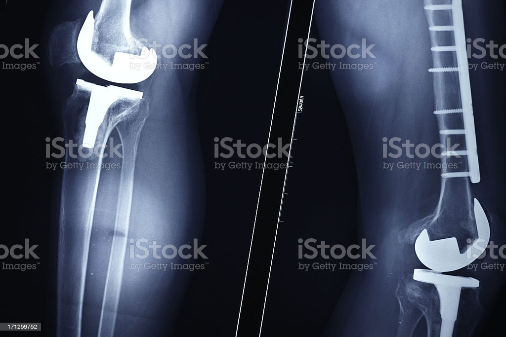 Digital x-ray following successful knee replacement surgery stock photo