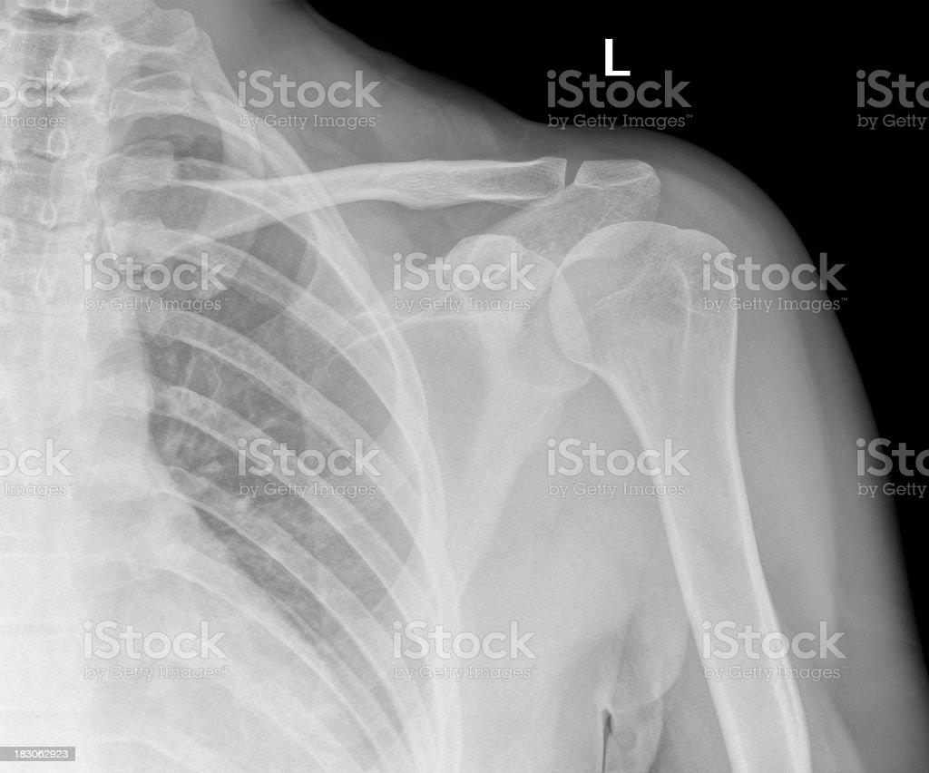 Gemütlich Schulter X Ray Anatomie Ideen - Menschliche Anatomie ...