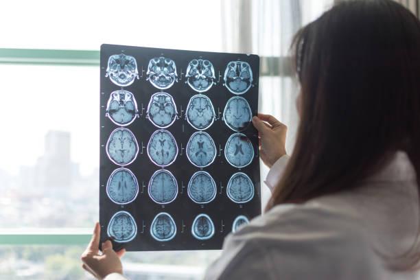 클리닉 병원에서 일하는 방사선 전문의 종양학과 뇌의 mri 디지털 엑스레이. 의료 의료 개념. - x 레이 뉴스 사진 이미지