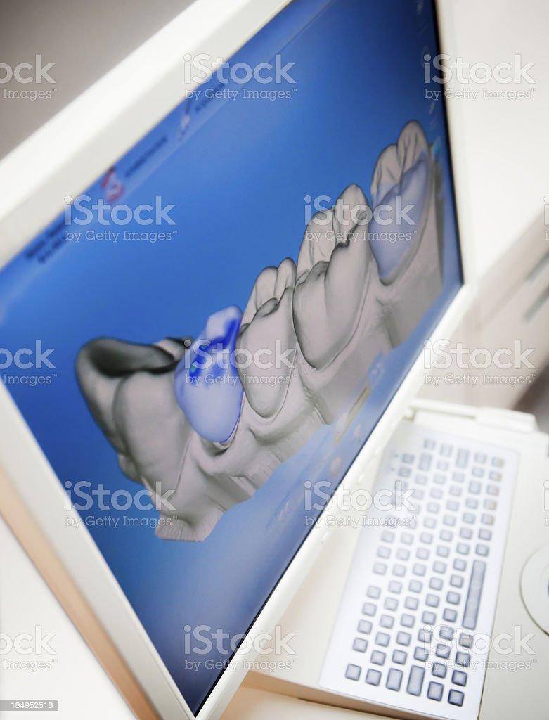 Digital X-ray Of Human Teeth stock photo