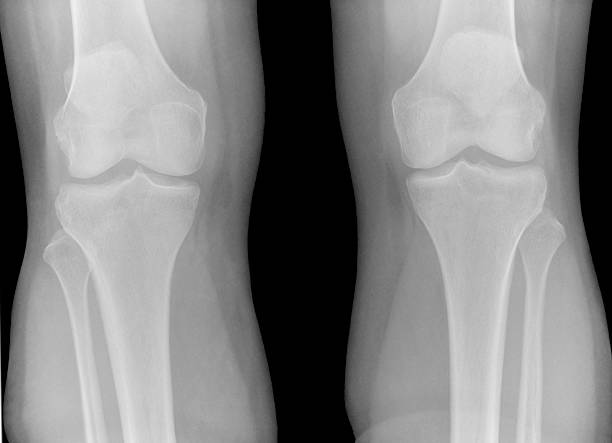 Digital x-ray of normal knees stock photo