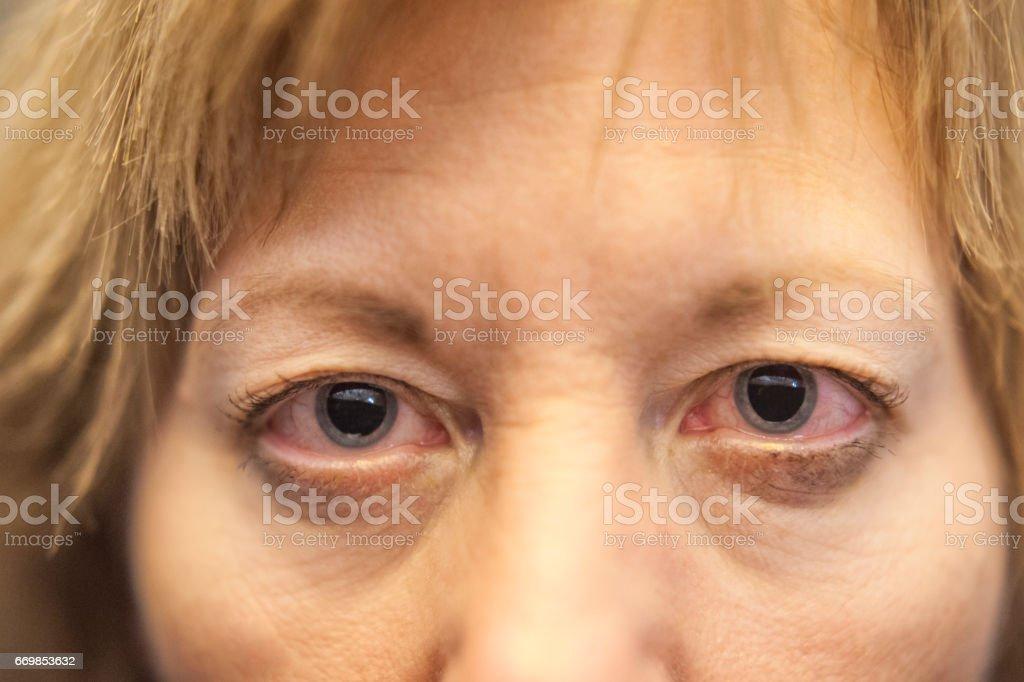 Dilated pupils stock photo