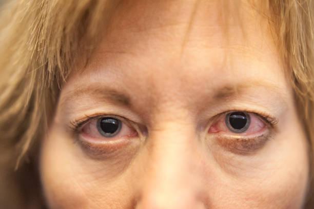 pupilles dilatées - oeil humain photos et images de collection
