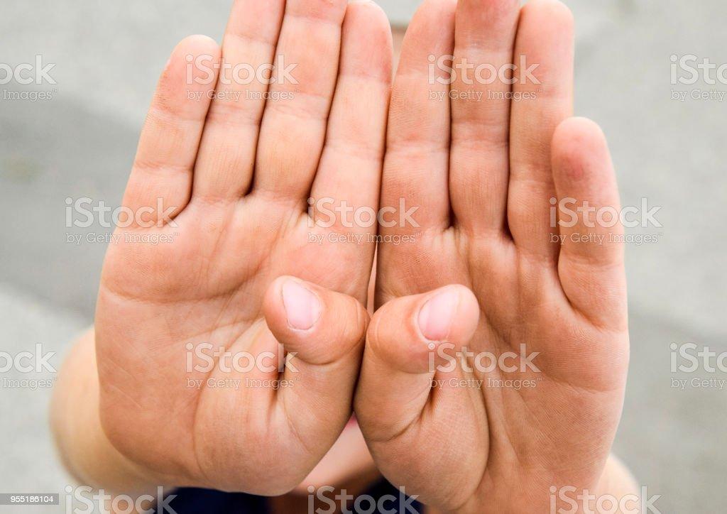 Schmutzige Kindisch Palmen Das Kind Zeigt Seine Verschmutzte Hande