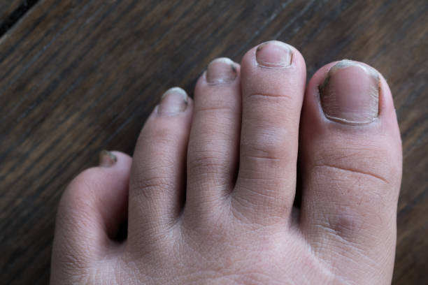 415 Long Toenails Stock Photos Pictures Royalty Free Images Istock