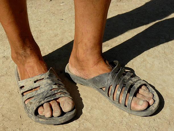 5db744a65 Top 60 Ugly Feet Stock Photos