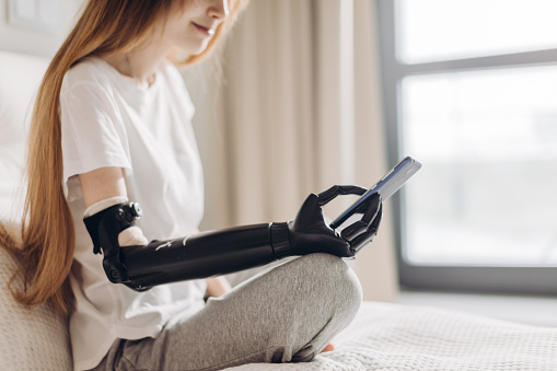 istock disabled girl holding her mobile phone with a robotic arm 1176972653