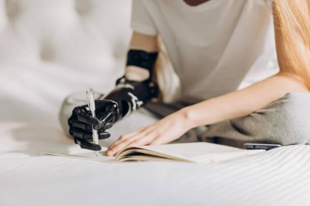 funktionshindrade girl lära sig att skriva med en protes arm - protesutrustning bildbanksfoton och bilder
