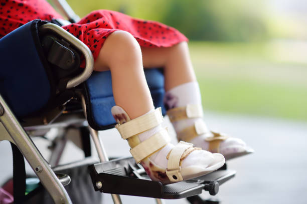 Disabled girl sitting in wheelchair. On her legs orthopedic equipment . Child cerebral palsy. Inclusion. stock photo
