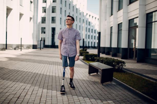funktionshindrade ung man med foten protes promenader längs gatan. - protesutrustning bildbanksfoton och bilder