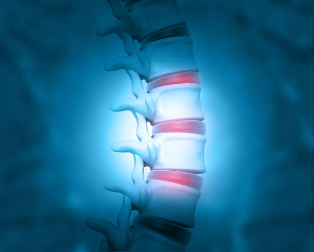 Disc problem of human spine stock photo