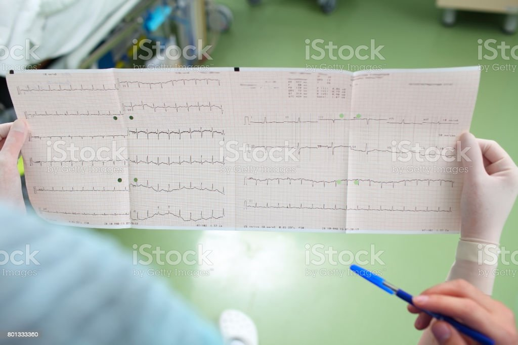Discussion on documents (ECG) of the patient stock photo