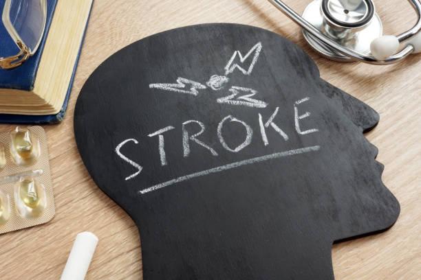 Disease Stroke written on a head shape. stock photo