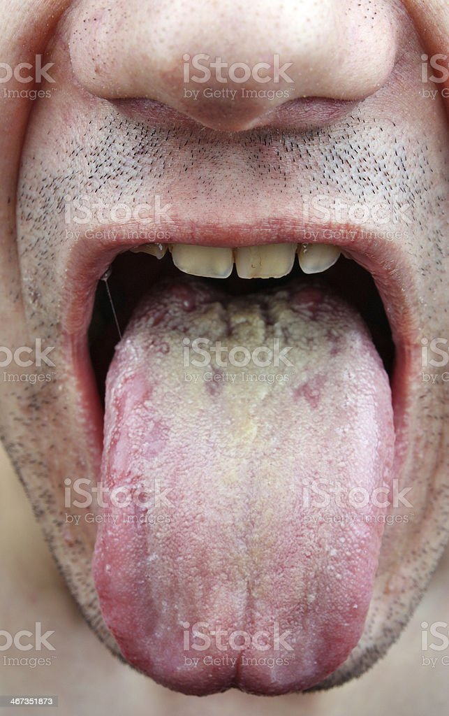 Disease tongue stock photo