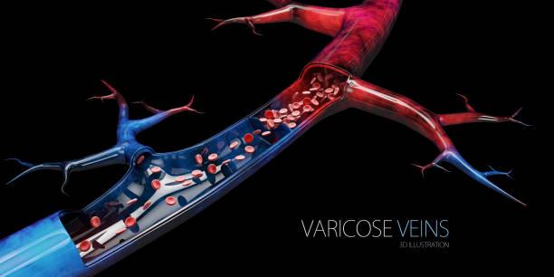 Disease varicose veins, 3d illustration isolated black stock photo