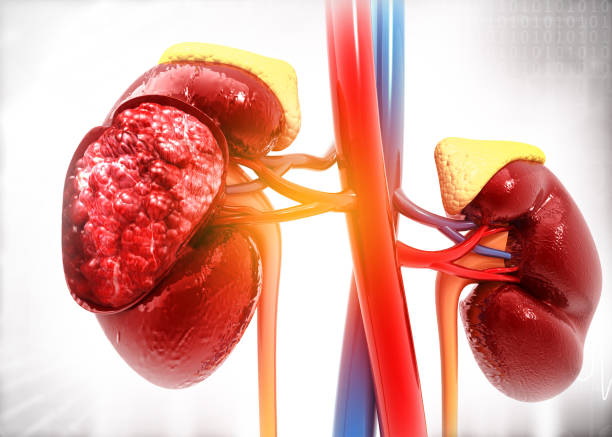 Diseased human kidney on science background stock photo