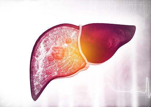 تنظيف الكبد من السموم/ المعادن اللازمة للحفاظ على صحة الكبد