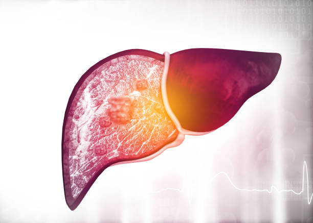 Diseased human liver on science background stock photo