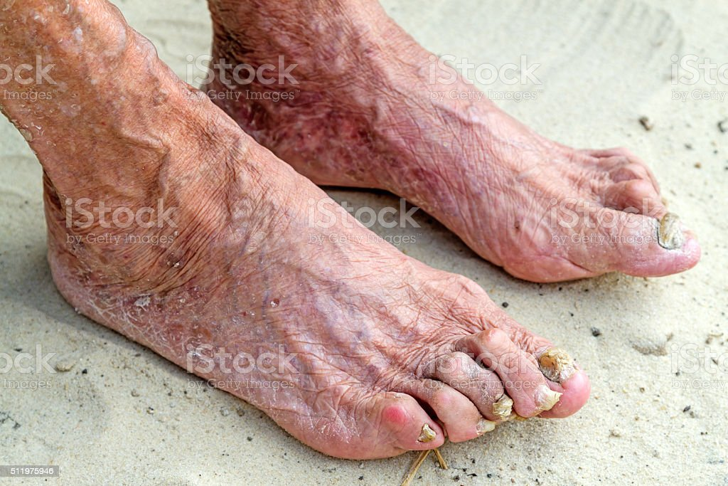 Diseased legs of an old woman stock photo