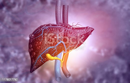3d illustration of Abstract medical background with Diseased liver