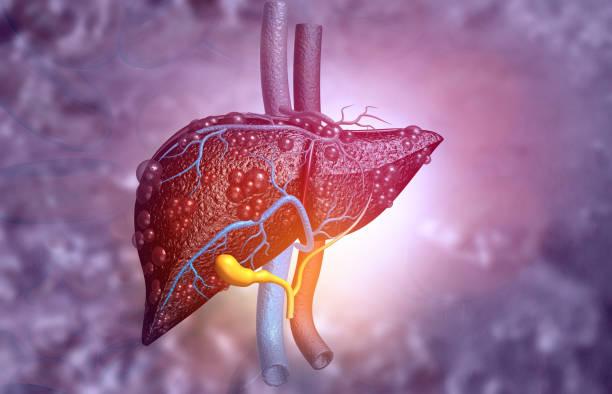 Diseased liver stock photo