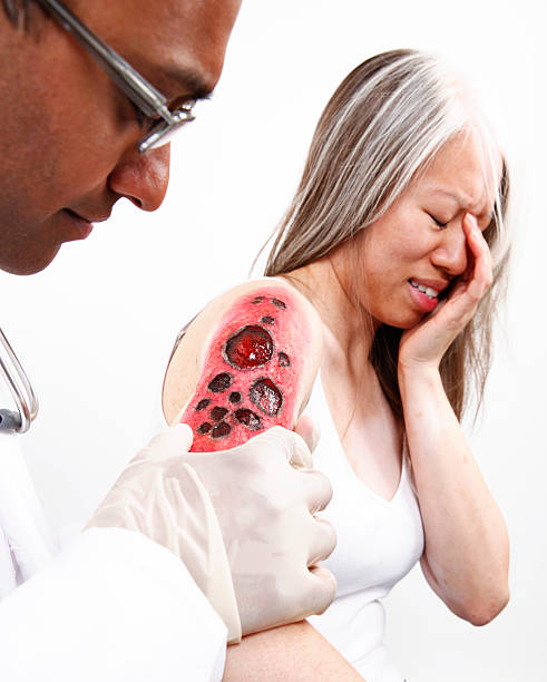 Docter Examining Burn on Patient stock photo