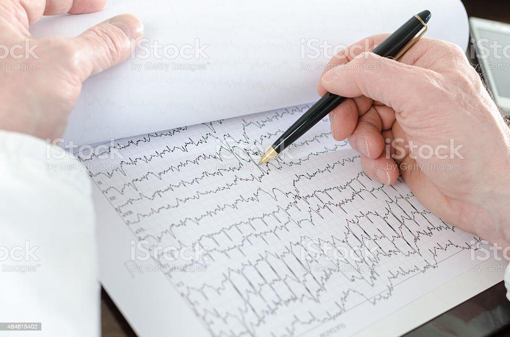 Doctor analyzing an electrocardiogram stock photo