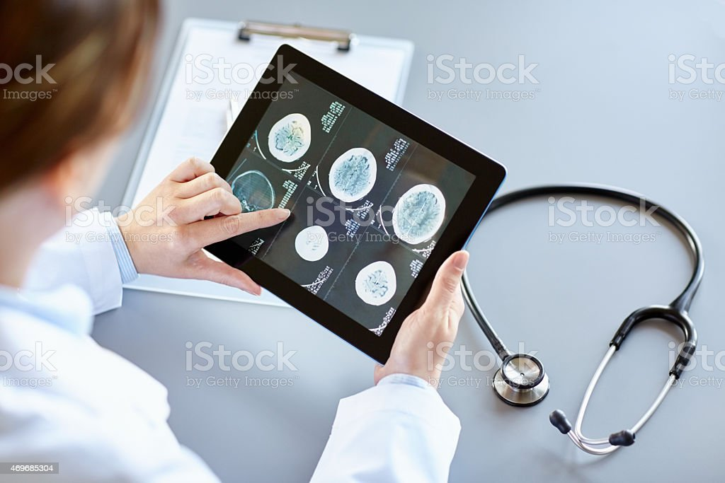 Doctor analyzing brain X-Ray while touching it on digital tablet stock photo