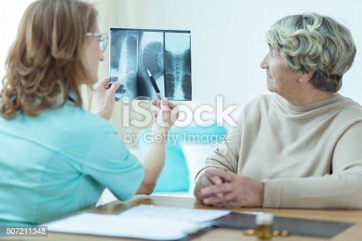 istock Doctor analyzing x-ray 507211348
