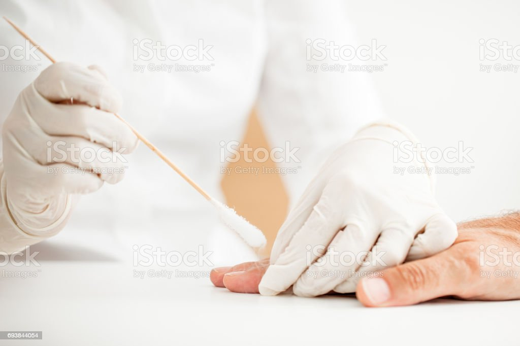 Doctor Applying Chryotherapy on Patient Skin on Hand stock photo
