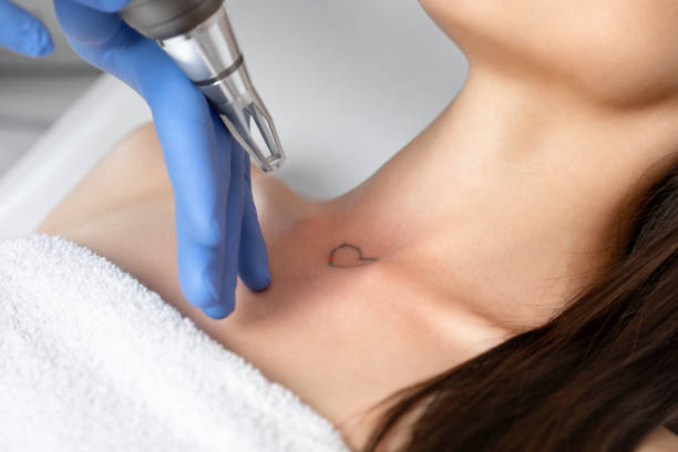 Doctor beautician makes laser tattoo removal on the neck of a young brunette woman in the salon. Aesthetic cosmetology, skin treatment and tattoo removal. stock photo