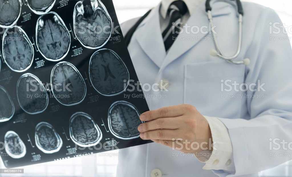 doctor brain mri stock photo