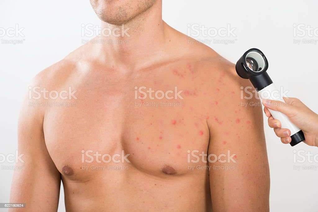 Doctor Checking Acne Skin Of Man stock photo