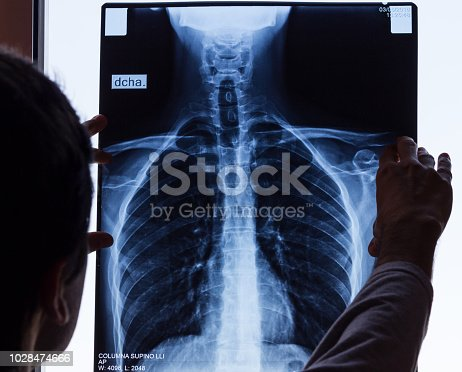 istock Doctor checking on chest X-ray 1028474666