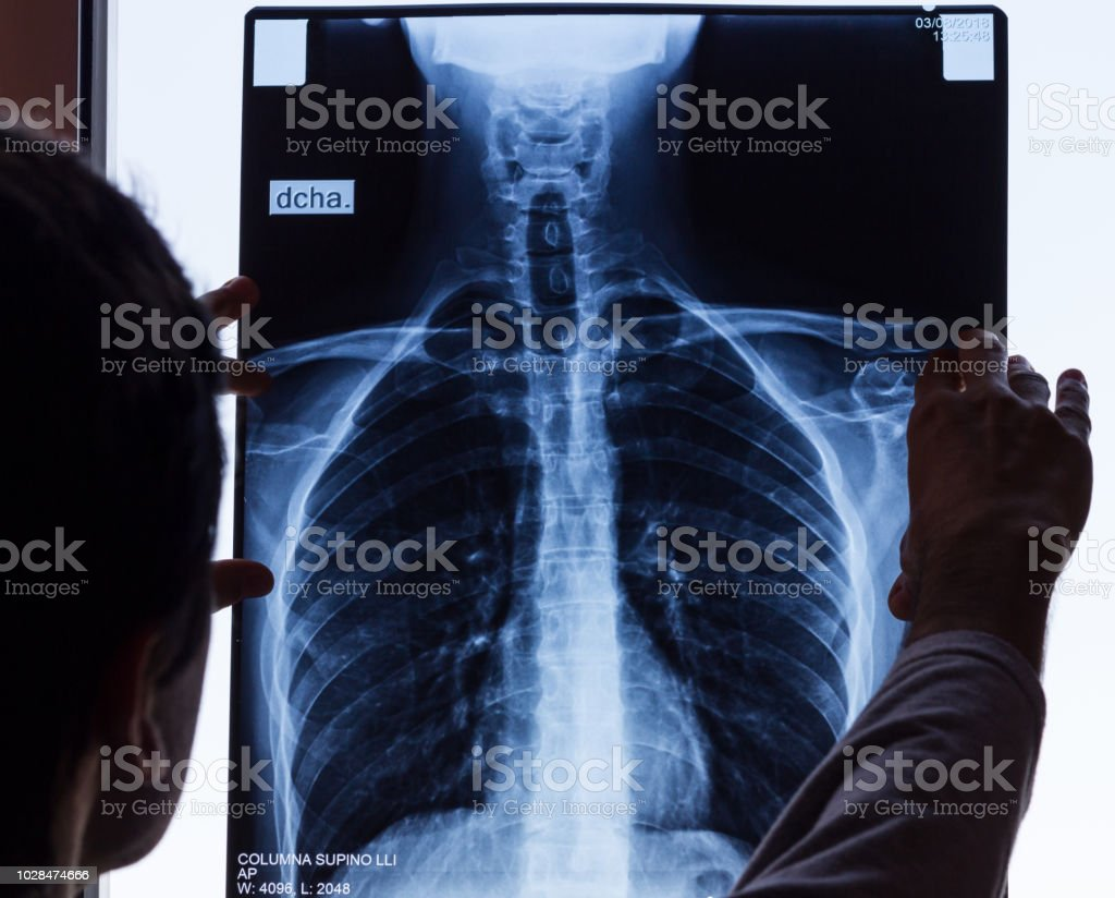 Doctor checking on chest X-ray stock photo
