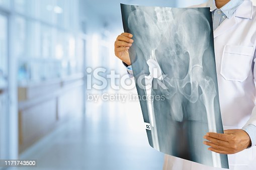637851338 istock photo Doctor checking Xray film of Hip replacement patient in hospital ward. 1171743500