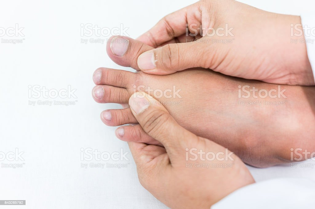 doctor checks a patient's toe nails that child because the child's unusual nails can tell the symptoms of the disease. stock photo