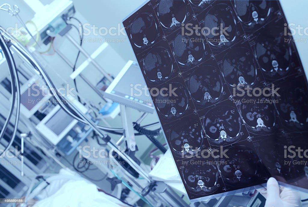 Doctor considering CT scan of heavy patient stock photo